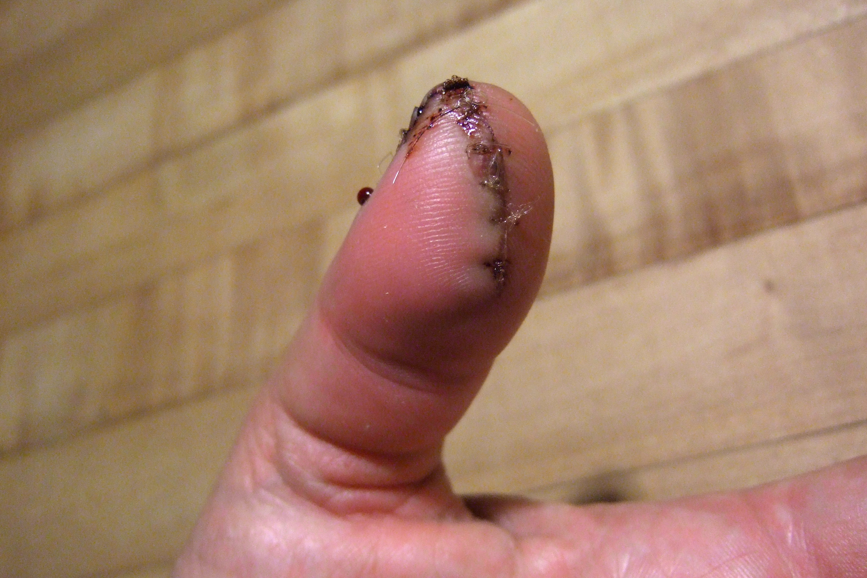 Thumb stitches by Ginger Allman